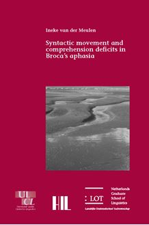 Picture of Syntactic movement and comprehension deficits in Broca's aphasia